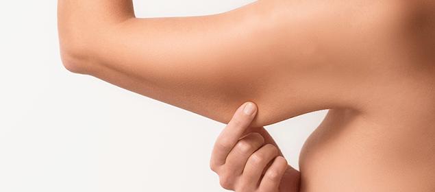 Flacidez bajo el brazo